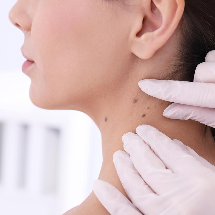 Tumori, melanoma cutaneo fa meno paura: 90% pazienti guarisce
