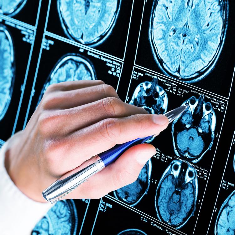 SLA e demenza frontotemporale: primo passo test diagnosi precoce