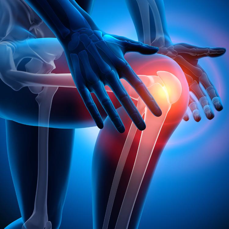 Un idrogel per ripristinare cartilagine del ginocchio danneggiata